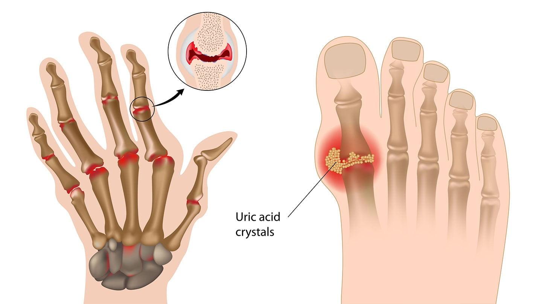 Arthritis Condition Natural Remedies