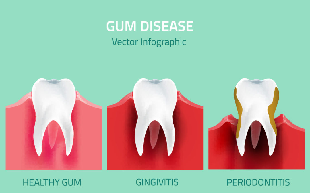 How Gum Disease Affect Your Overall Health
