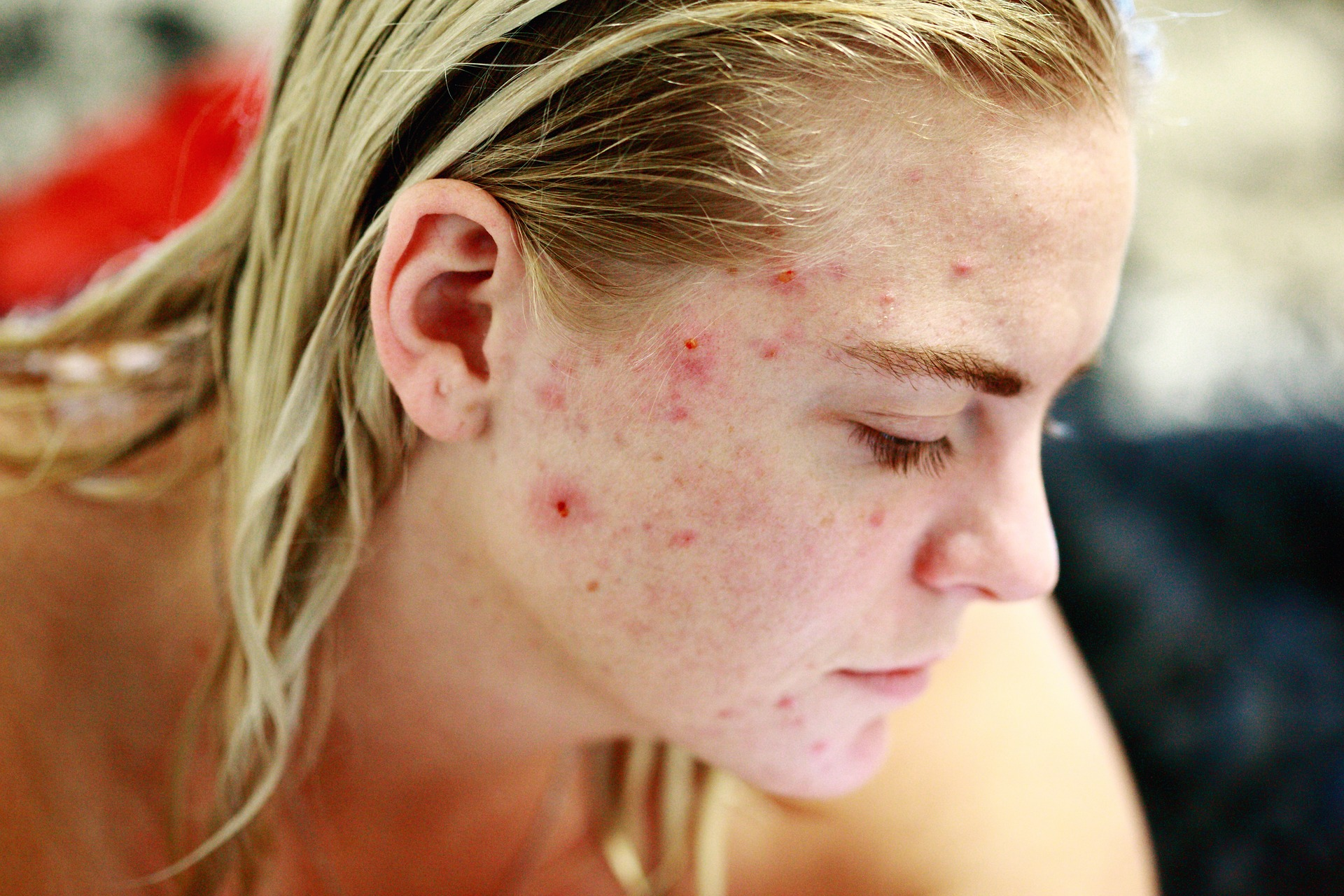 What is Acne Popping?