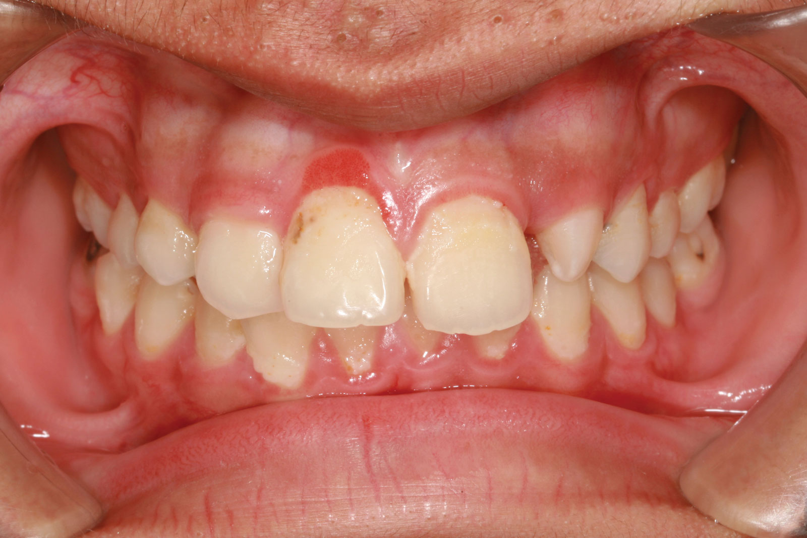 Tooth Plaque
